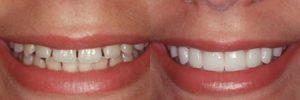 faccette dentali colleferro